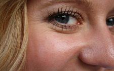 mezoterapia iglowa glowy i twarzy